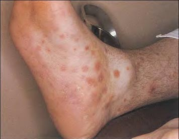 Syphilis Rash Symptoms